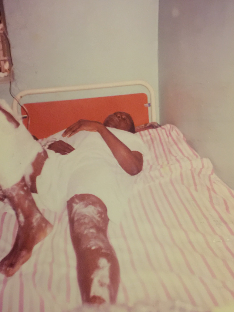 Augustine Kanjia lies in pain after surgery in Freetown, Sierra Leone.